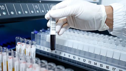 科技基金:廿六新冠病毒科研項目獲資助