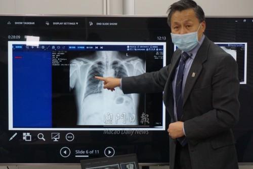 【廿秒完成檢測】澳科大研新冠肺炎AI診斷系統